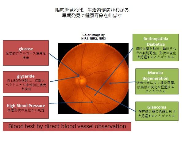 Fig眼底検査.jpg